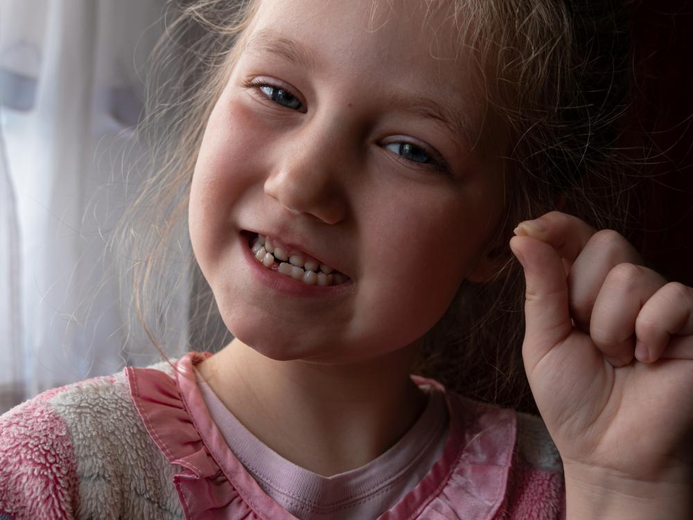 Порядок смены молочных зубов у детей