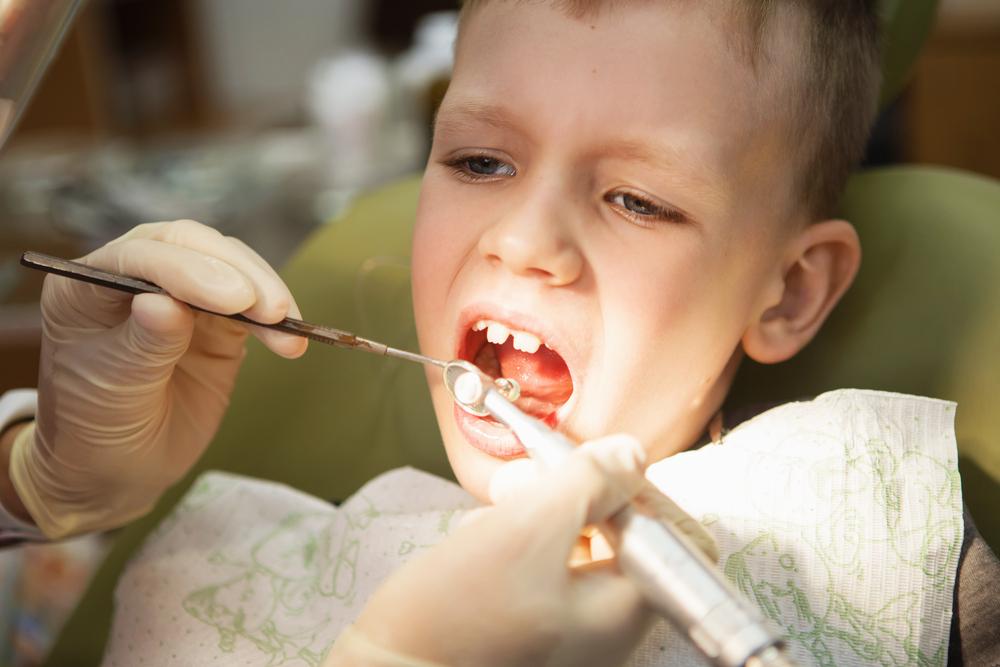 Пластика уздечки языка от клиники Dentalbrothers-kids